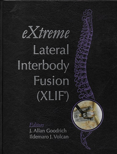 Extreme Lateral Interbody Fusion